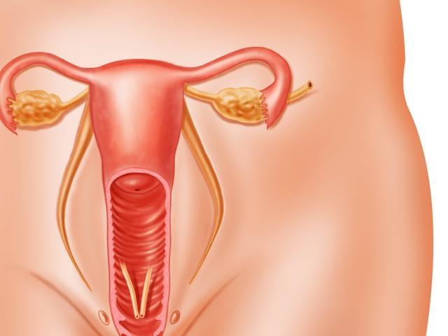 Невоспалительные болезни женских половых органов: взгляд на проблему