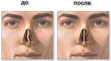 Ринопластика носа у мужчин и женщин 2