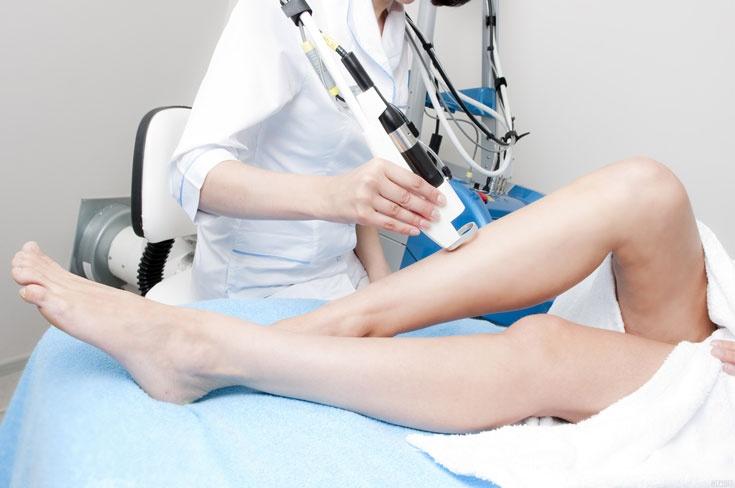 Лазерная эпиляция ног: как избавиться от волос навсегда 2