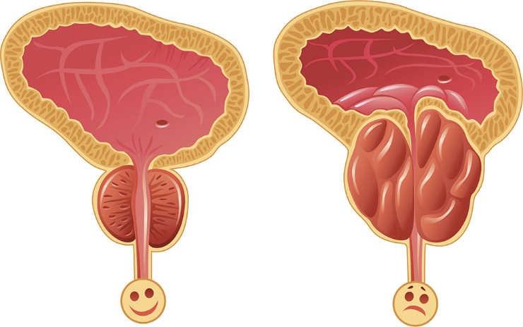 Аденома предстательной железы: как лечить?