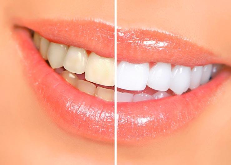 На все 32: что стоит учесть при отбеливании зубов?