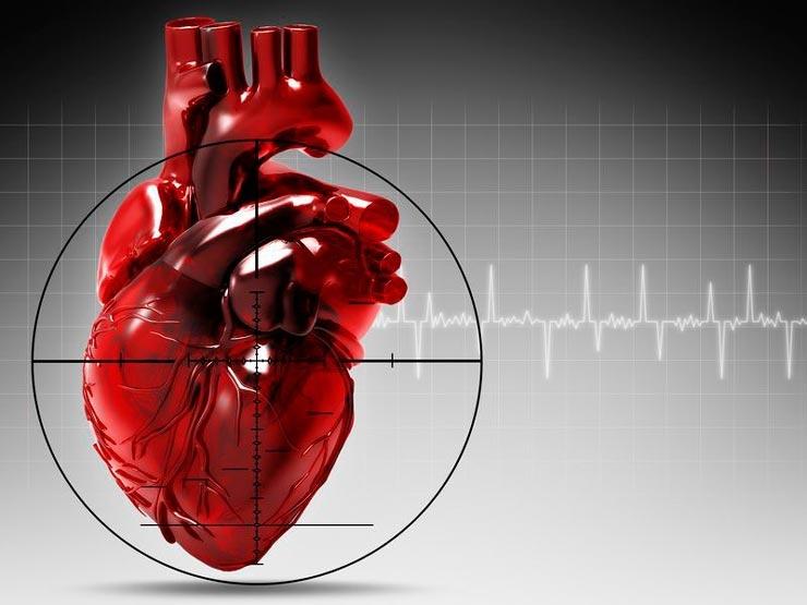 Инфаркт миокарда. Симптоматика. Причины (факторы риска)