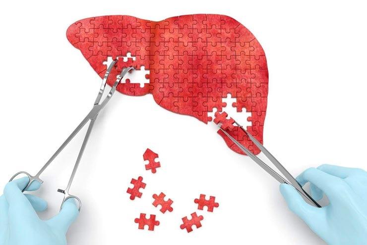 Гепатит можно вылечить?